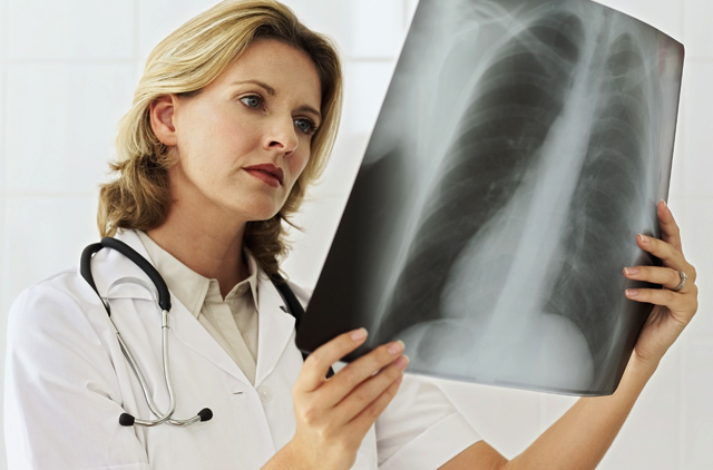 Chest X-ray to check fitness 'is outdated'