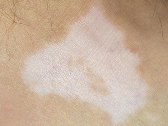 I Have A White Patch On My Leg Community Gulf News