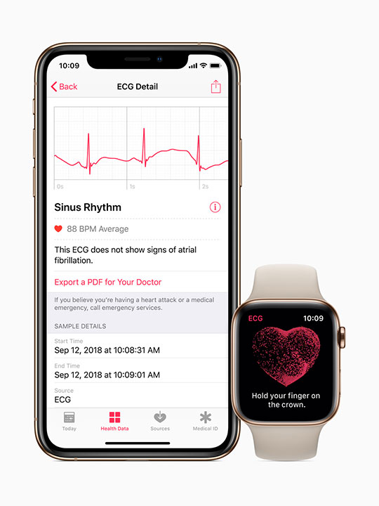 ECG iphone and apple watch