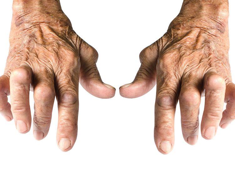 Arthritis123