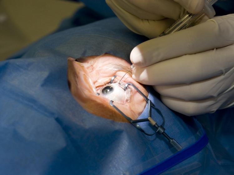 cataract-surgery-1553862525459