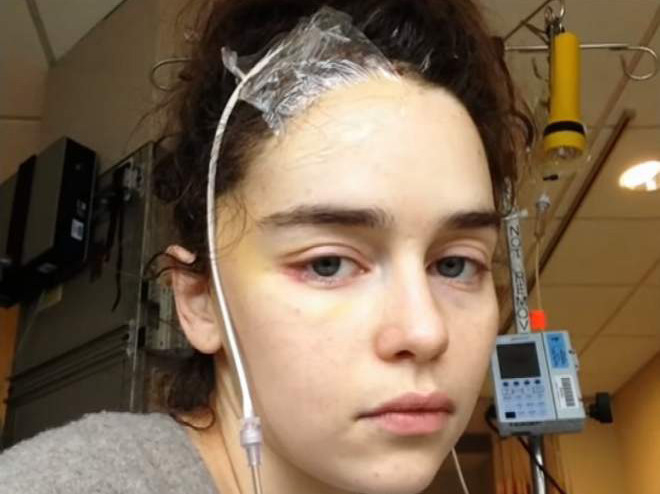 tab-Emilia-Clarke---reveals-brain-surgery-images-1554876046842