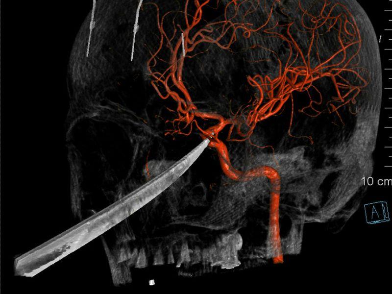 Boy_Impaled_Kansas_55752