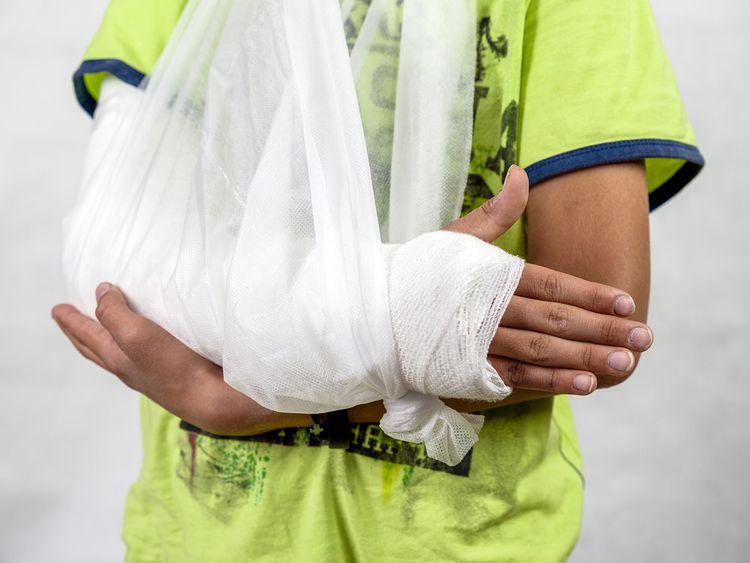 iStock-1028144132 arm cast