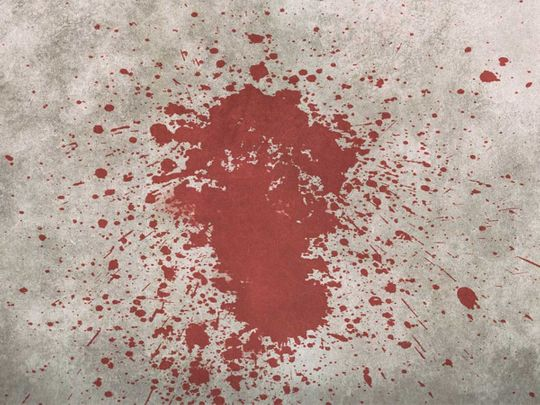 blood, blood stain, blood splatter