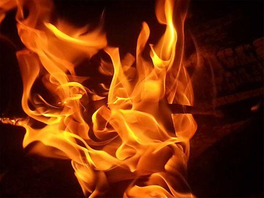 Muslim boy set on fire dies in Varanasi hospital