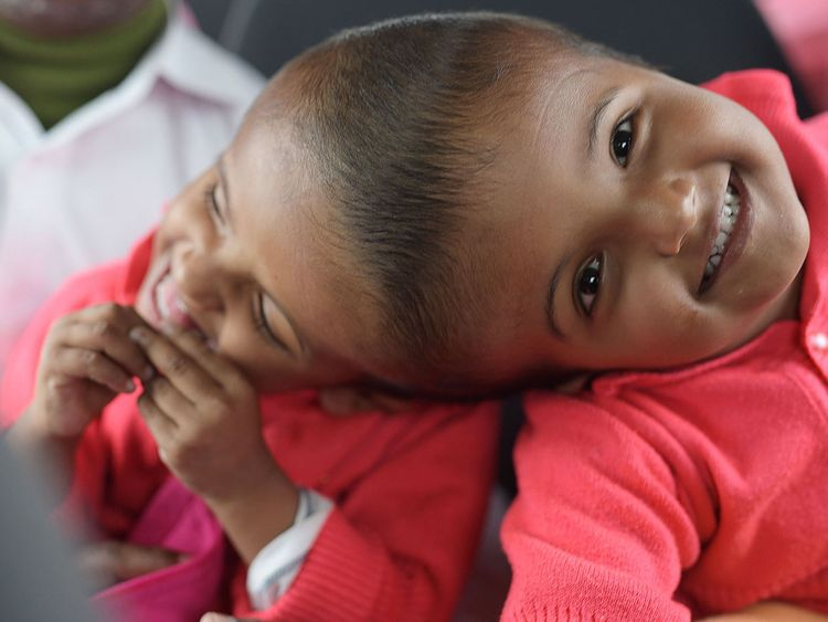 Conjoined Bangladeshi twins separated after 33-hour surgery