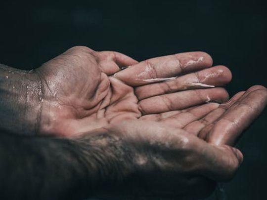 Sweaty hands