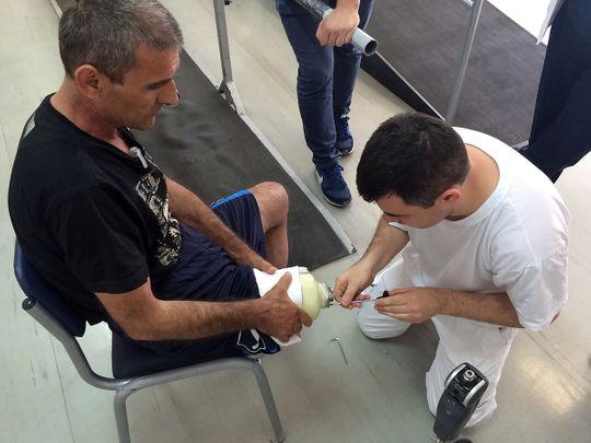 New prosthetic leg with 'feeling' improves mobility