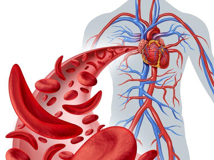 Dubai Health Authority Sickle Cell Aenemia