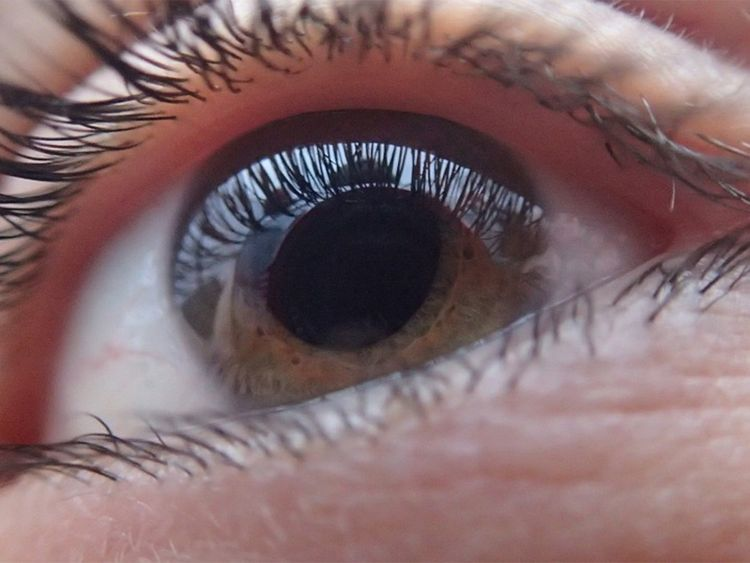 Here's another reason for you to get cataract surgery
