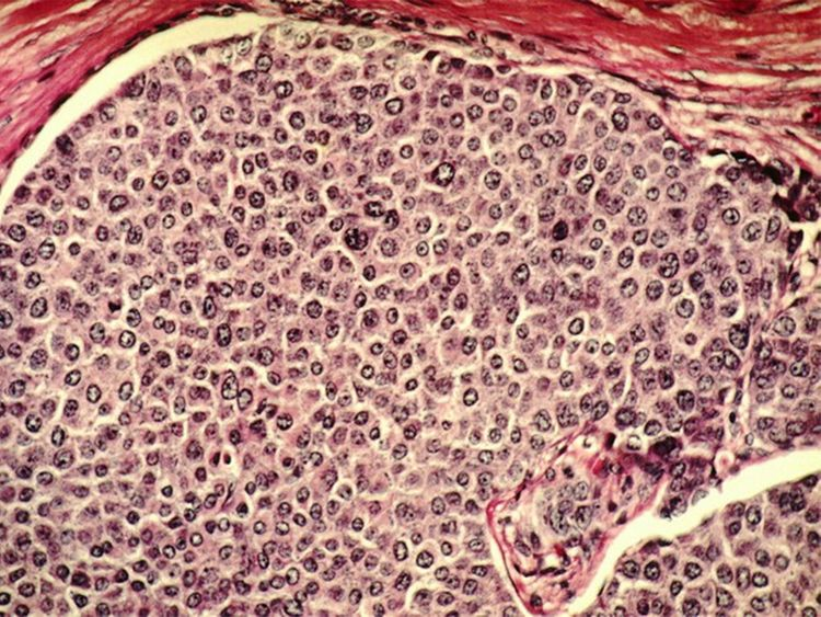 Oxygen-starved tumor cells have survival advantage that promotes cancer spread