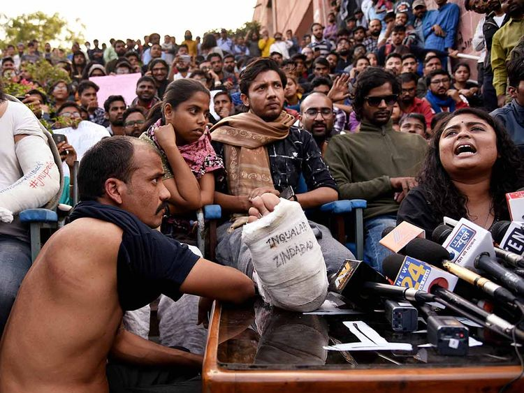 JNU students show their marked injuries during a press conference, at JNU Campus in New Delhi on Tuesday
