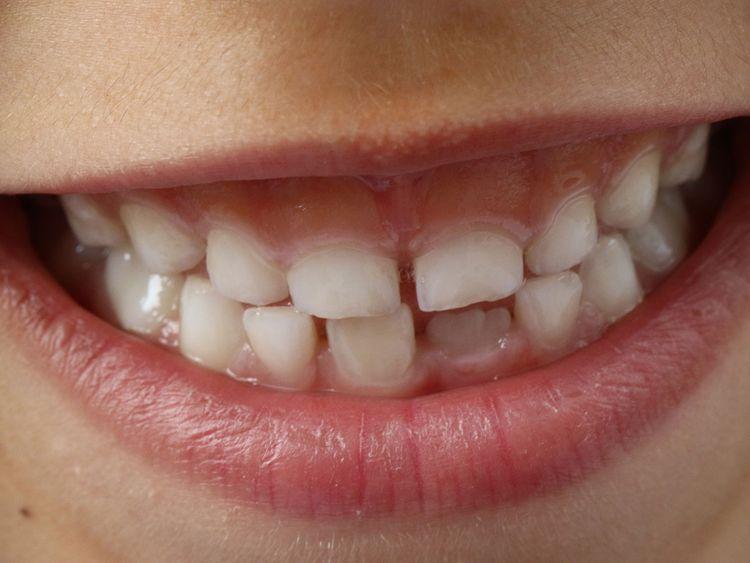 teeth generic