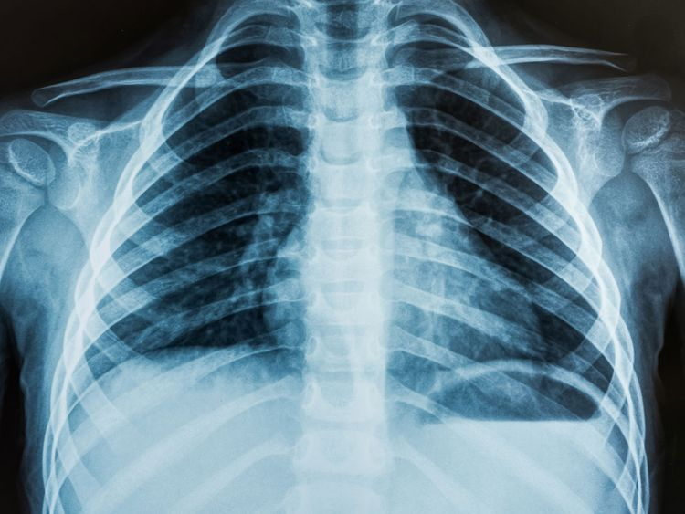 x-ray generic