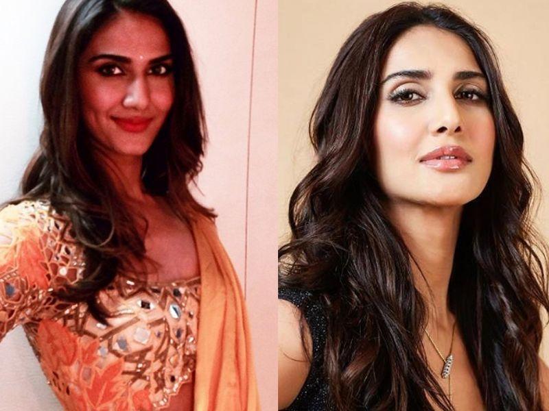 Celebrities who have undergone plastic surgery