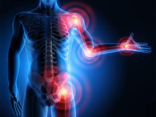 This drug holds promise for arthritis treatment