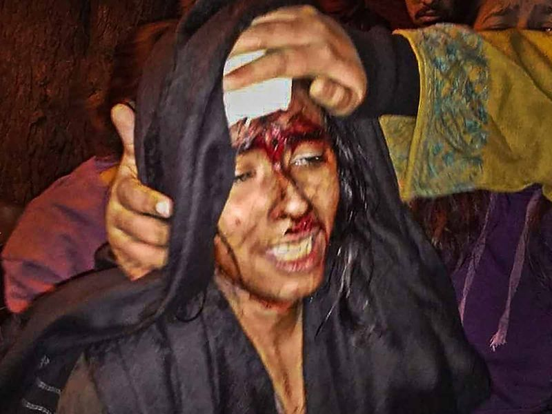 JNUSU President Aishe Ghosh is seen injured after being attacked at JNU