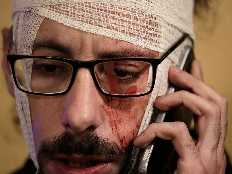 An injured anti-government protester speaks on his mobile during a protest in Beirut, Lebanon.