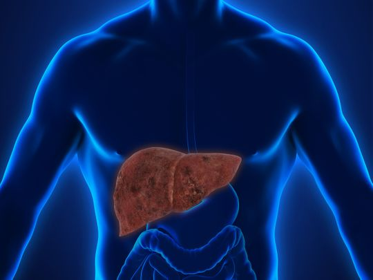 Dubai Health Authority fatty liver disease