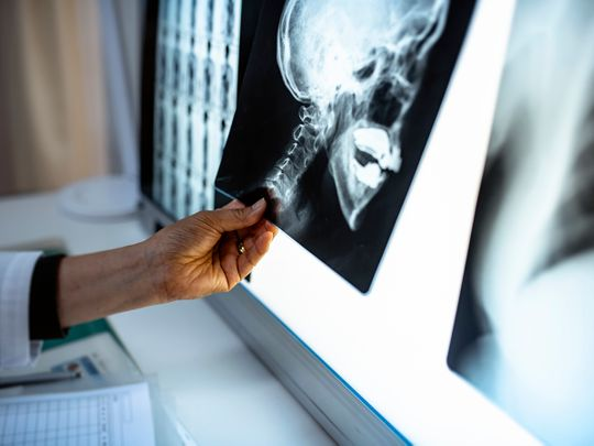 Dubai Health Authority tumor removed from patient skull
