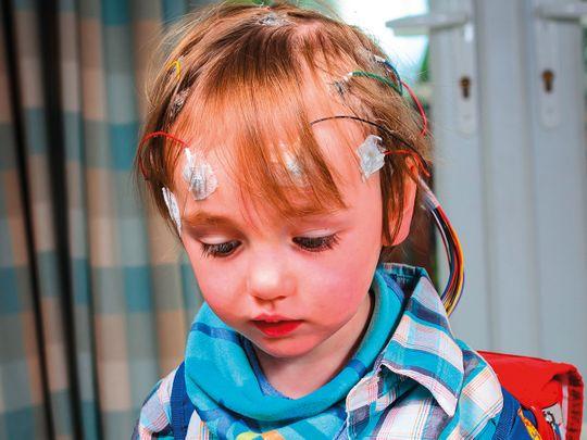 Neurological kid