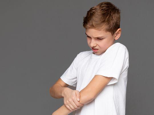 Dubai Health Authority juvenile arthritis