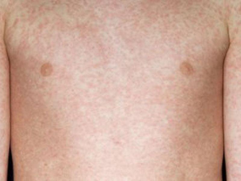 BC Measles