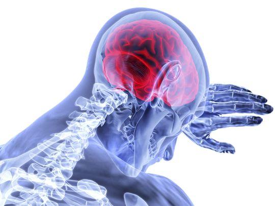 Brain inflammation, generic
