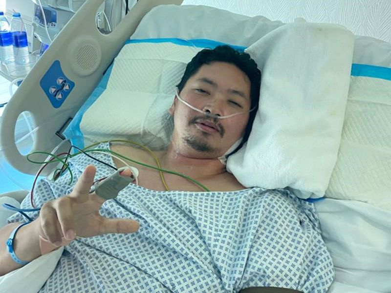 Angelito seen here after coming off the ventilator
