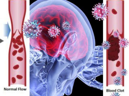 Blood clot coronavirus