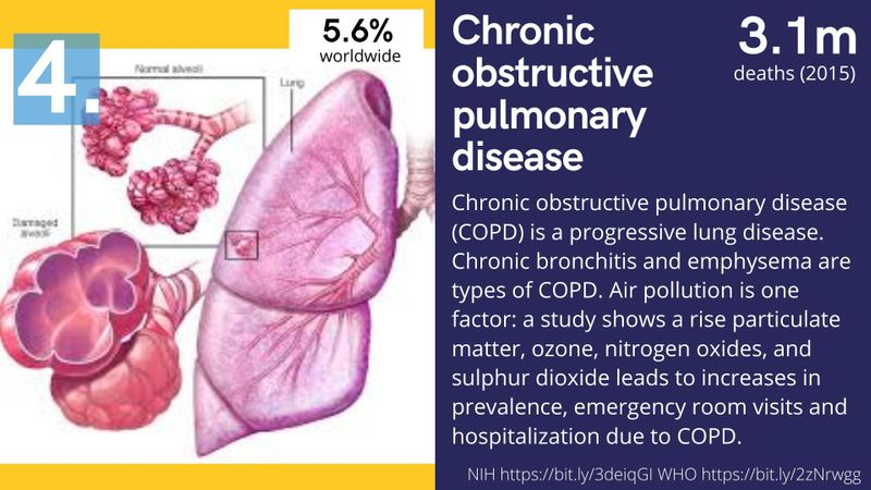 COPD pulmonary disease