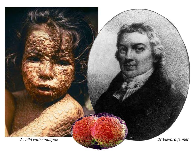 Smallpox vaccine Edward Jenner inventor of vaccine