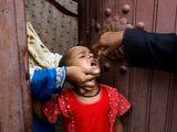 Pakistan polio vaccine karachi