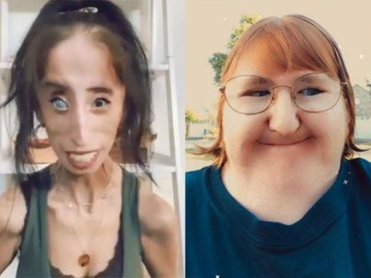 Disability advocates, Lisa Velasquez and Melissa Blake called for an end to the #NewTeacherPrank on TikTok