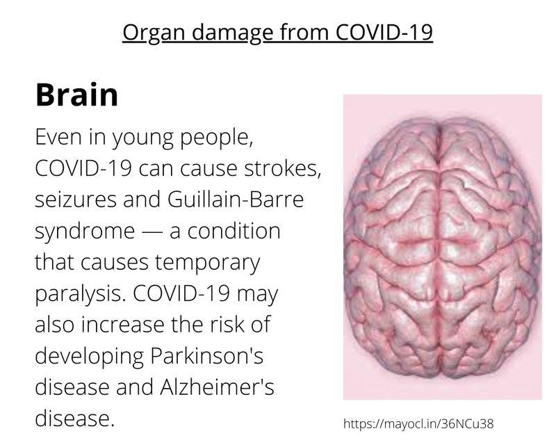 COVID EFFECTS ON BRAIN