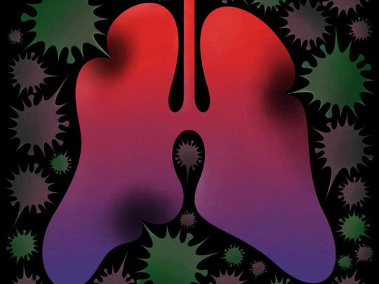 OPN-Lung-Cancer