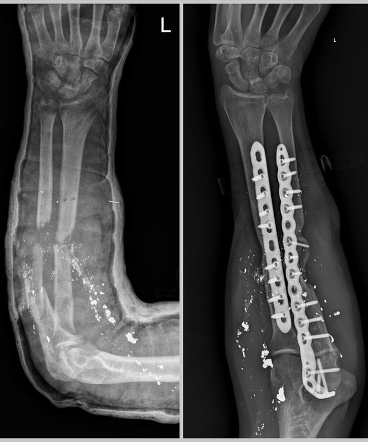 NAT The X-Ray's of Mohamed Hazrat's before and after-1605590686765