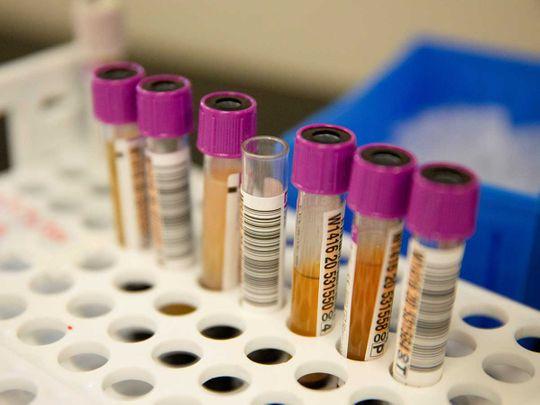 Convalescent plasma samples covid vials
