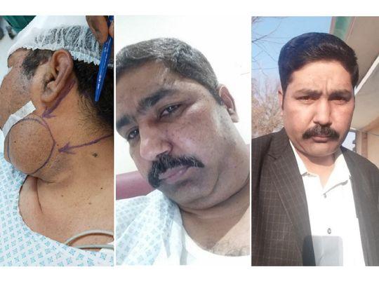 Mohammed Imran surgery