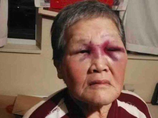 Xiao Zhen Xie granny racial San FRancisco punch
