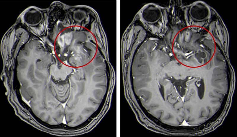 Brain_Tumors_Virus_Treatment_10047