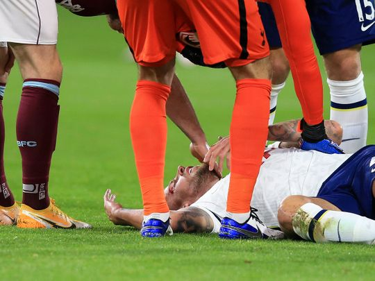 Tottenham's Toby Alderweireld is checked by fellow players after injuring his head during the English Premier League match between Burnley and Tottenham Hotspur.