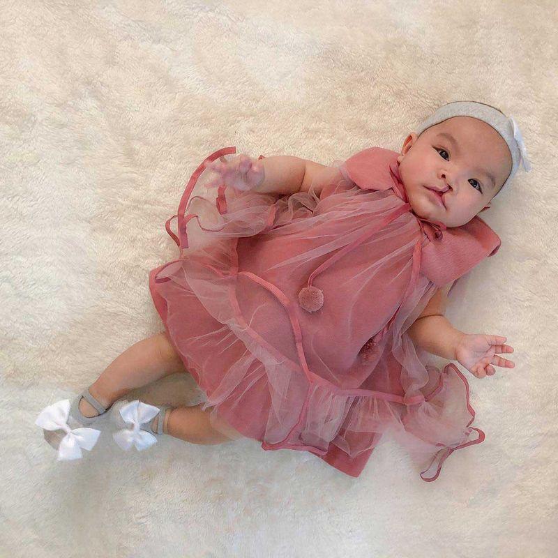 NAT Filipina baby BEFORE-1622120424735