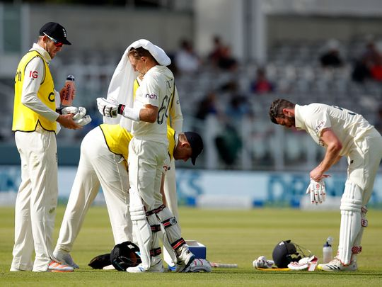 England are feeling the heat