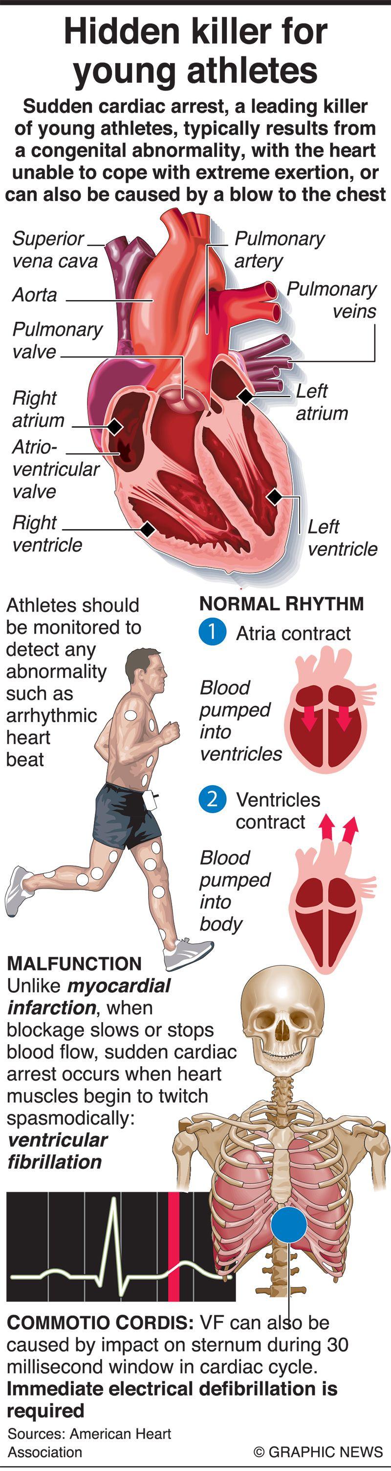 Infographics: Sudden cardiac arrest is a hidden killer for young athletes