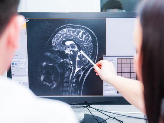 shutterstock_brain injury-1624455540151