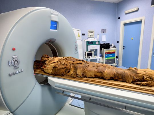 Pictures: Italian hospital uses CT scan to unveil secrets of Egyptian mummy