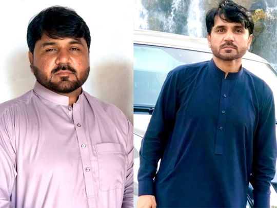 Zahid Badshah before and after