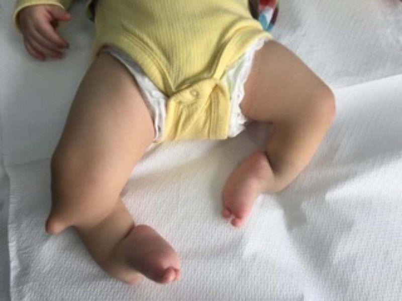 Baby Memet Salih Demirezzen born with unformed lower limbs faced the prospect of amputation-1631339030941